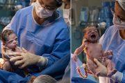 गर्भनाल काटते वक्त डॉक्टर को घूरने लगी ये नवजात बच्ची, तस्वीर वायरल