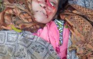 महिला की चाकुओं से गोदकर हत्या, नाक पर भी किये वार, चादर में लपेटकर फेंका शव